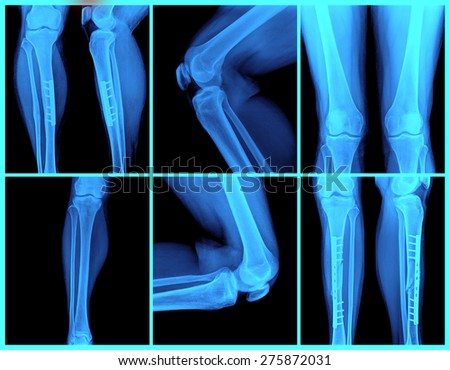 knee collection: x-ray of knee joint - stock photo