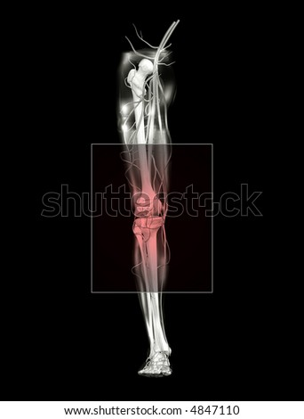 Knee Pain, Front View - stock photo