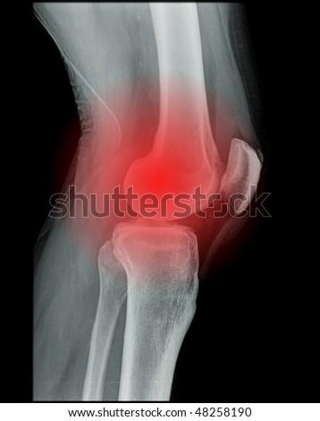 knee pain, x-ray of a human knee - stock photo