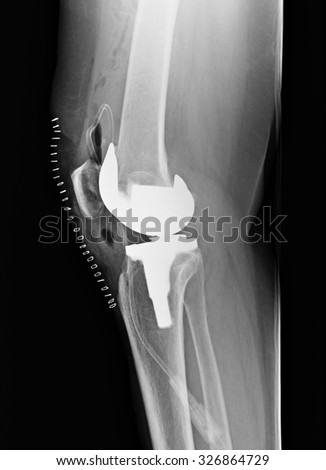 Knee with total replacement x-ray image on black background. - stock photo