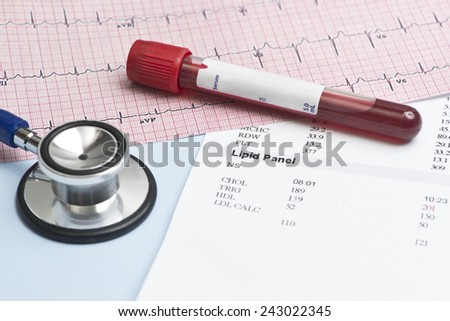 Laboratory report with lipid panel, stethoscope, and electrocardiograph. - stock photo