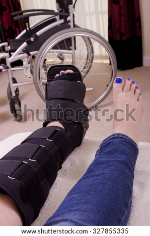 Lady with Fractured Leg A lady with a fractured leg sat on a chair  with her leg supported in an orthopaedic boot, showing only her legs with a wheel chair in the background. - stock photo