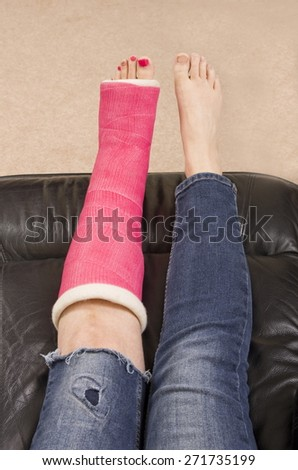 Lady with Fractured Leg A lady with a fractured leg sat on a chair  with her pink pot supported, showing only her legs. - stock photo