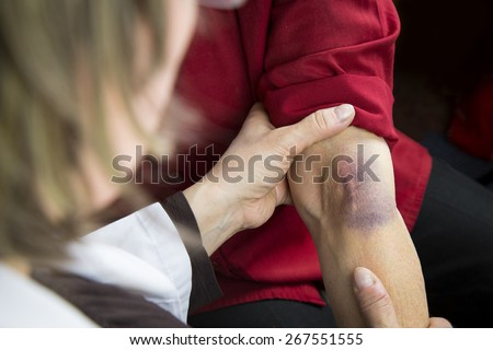 Large bruise on human arm. Injection bruises. Doctor and patient - stock photo