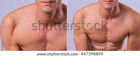 Laser scar removal before and after. Attractive Man with scar on his shoulder - stock photo