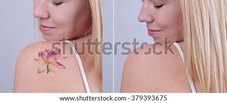 Laser tattoo removal before and after. Beautiful young woman with tattoo on her back - stock photo
