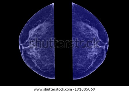 Lateral mammogram of female breast. In higher magnification you may see  small micro-calcifications as sign of probable malignancy of the tumor. - stock photo