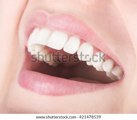 Laughing woman with perfect teeth