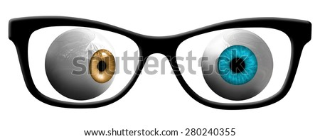 Lazy Eye - stock photo