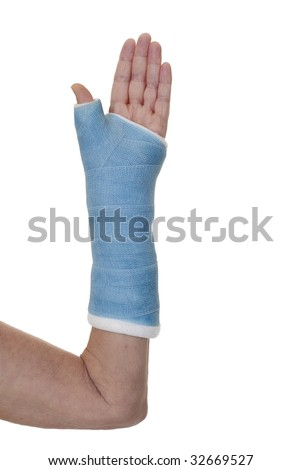 left arm in blue cast after reconstructive surgery on thumb