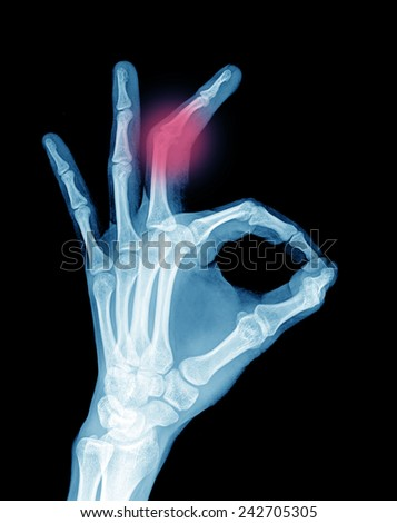 Left hand radiography with wrist and upper arm,OK - stock photo