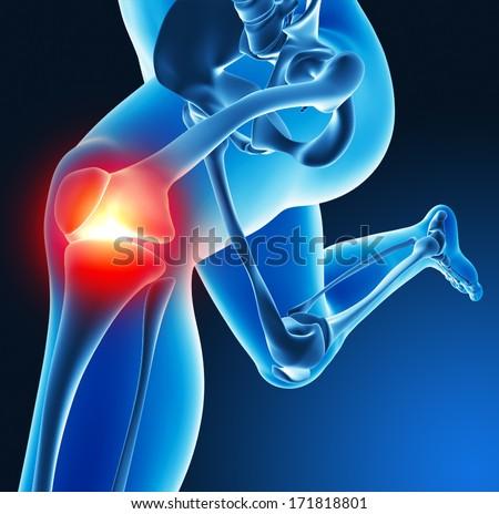 Leg joint pain - stock photo