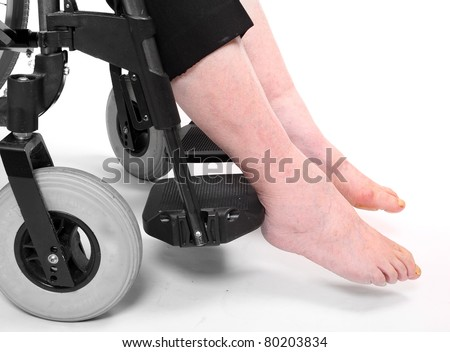 Legs disease of an elderly paraplegic woman sitting in a wheelchair. Immobility metaphor. - stock photo