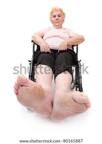 Legs disease of an elderly paraplegic woman sitting in a wheelchair. Immobility metaphor. Close up with shallow DOF. - stock photo