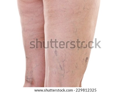 Legs with varicose veins - stock photo