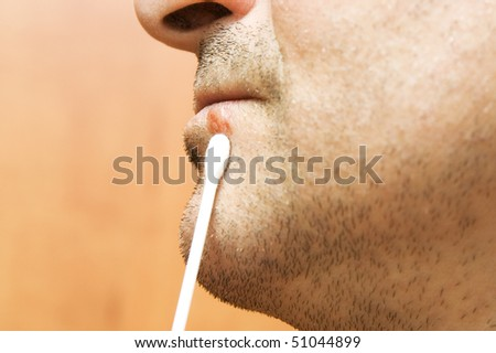 Lips affected by herpes - stock photo