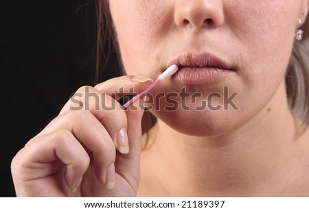Lips affected by herpes. Treatment with a cotton swab. - stock photo