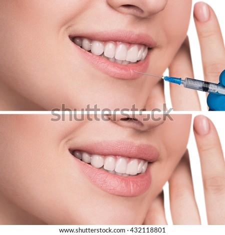 Lips before and after filler injections - stock photo