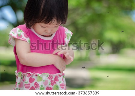 Little Asian girl has allergies with mosquitoes bite - stock photo