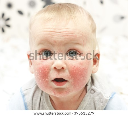 Little baby with dermatitis on face - stock photo