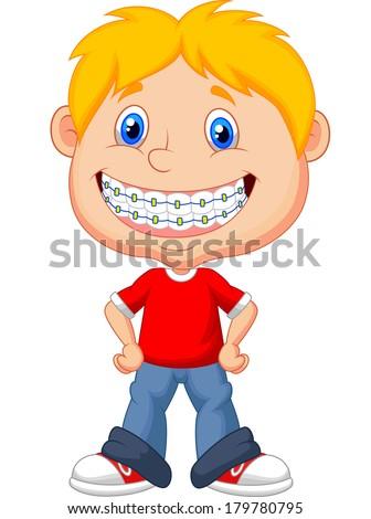 Little boy with brackets/braces - stock photo