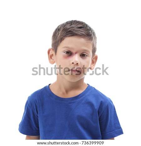 Little boy with bruises on white background. Domestic violence concept