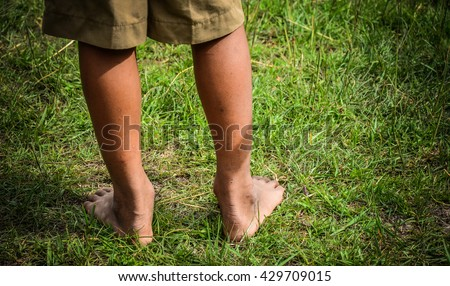 Little boys legs standing on grass.Legs standing on green grass having fun outdoors in spring park. Feet of a Child Living in Poverty.Barefoot boy standing beside the ball field . - stock photo