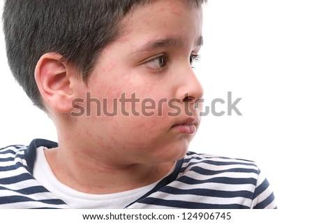 Little child suffering urticaria - stock photo