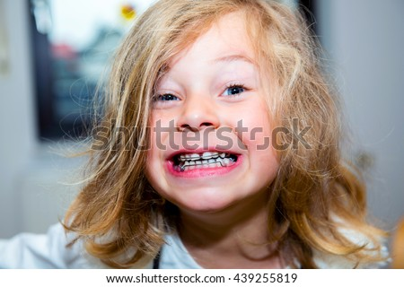 little funny girl with retainer looking in to the camera - stock photo