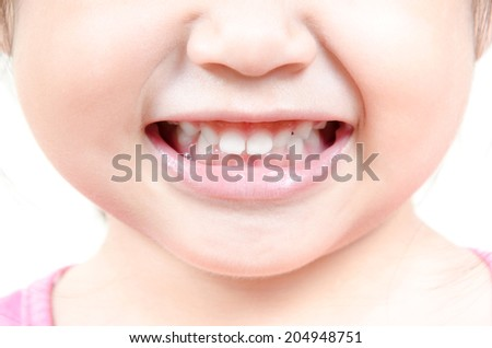 little girl smiles close-up - stock photo