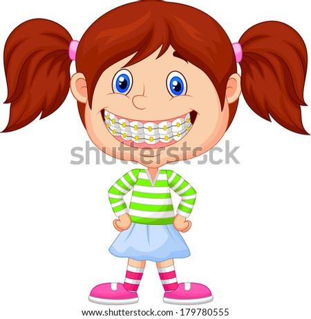 Little girl with brackets/braces - stock photo