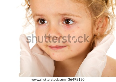 Little girl with small pox at the doctors examination - isolated, closeup - stock photo