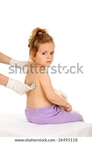 Little girl with small pox at the doctors examination - isolated healthcare concept - stock photo