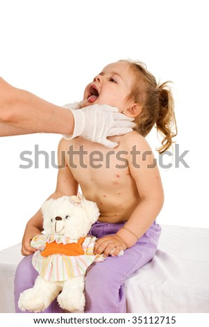 Little girl with small pox or severe skin rash at the doctors - isolated - stock photo