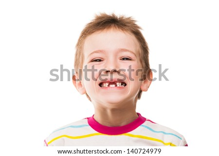 Little smiling child boy showing his first baby milk or temporary teeth fall out - stock photo