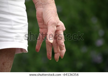 Living with pain series. Senior woman's hand by her side. Her finger are knotted with rheumatoid arthritis. - stock photo