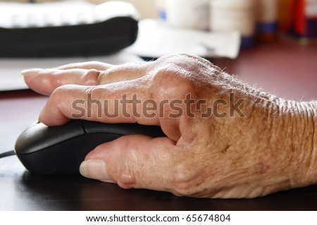 Living with pain series. Woman with rheumatoid arthritis using a computer mouse. - stock photo