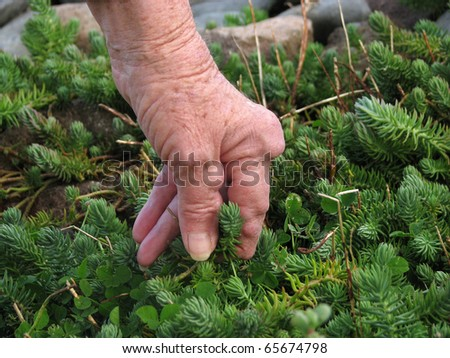 Living with pain series. Woman with rheumatoid arthritis weeding in the garden. - stock photo