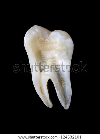 Longitudinal section from a human tooth isolated on black background - stock photo