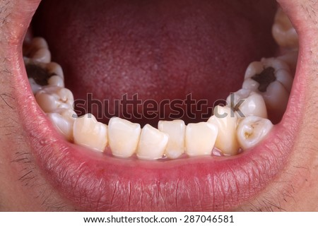 Lower jaw with crooked teeth - stock photo