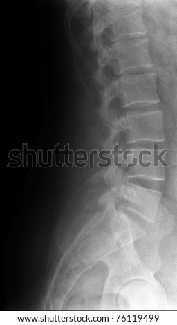 lumbar spine / Many others X-ray images in my portfolio.