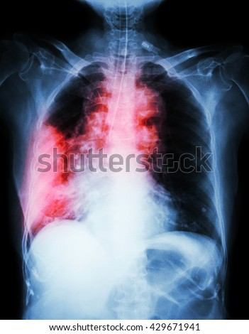 Lung cancer .  Film chest x-ray show right lung mass , wide mediastinum , pneumonia and right pleural effusion - stock photo