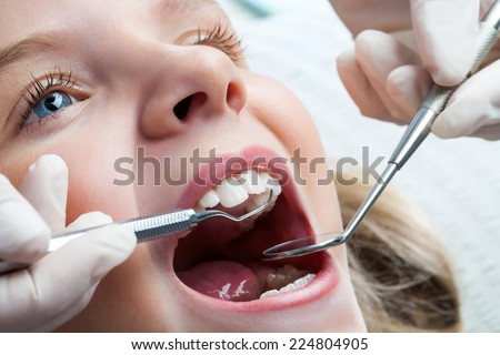 Macro close up of young child with open mouth at dentist. - stock photo