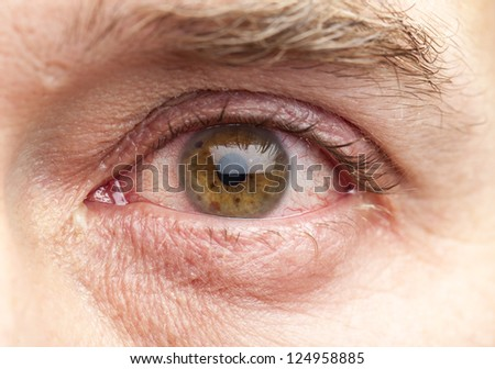 Macro shot of a human eye of a 40-year old man with brown iris and a slight infection. - stock photo
