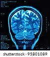 magnetic resonance image (MRI) of the brain - stock photo