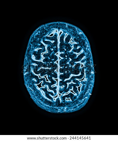 magnetic resonance image (MRI) of the brain scan - stock photo