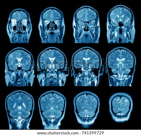 magnetic resonance image, mri scan of the brain