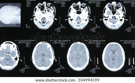 Magnetic resonance images of the human body. Head MRI or CT images