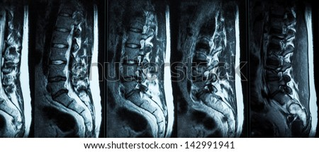 Magnetic resonance imaging (MRI) of lumbo-sacral spines demonstrating herniated disc at L3-L4 and L4-L5, crop from the film using backlight - stock photo