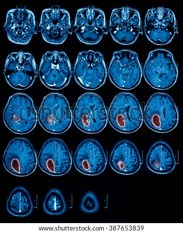 Magnetic resonance imaging (MRI) of the brain, brain tumor, brain abscess, transverse view.